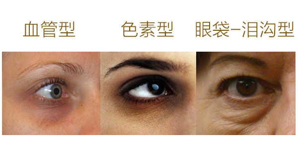 黑眼圈類型