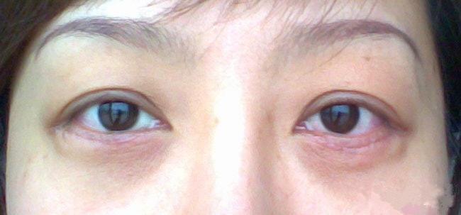 去眼袋疤痕