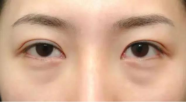 水腫型眼袋