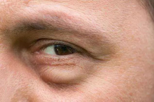 鬆弛型眼袋