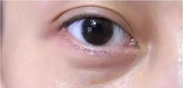淚溝型眼袋