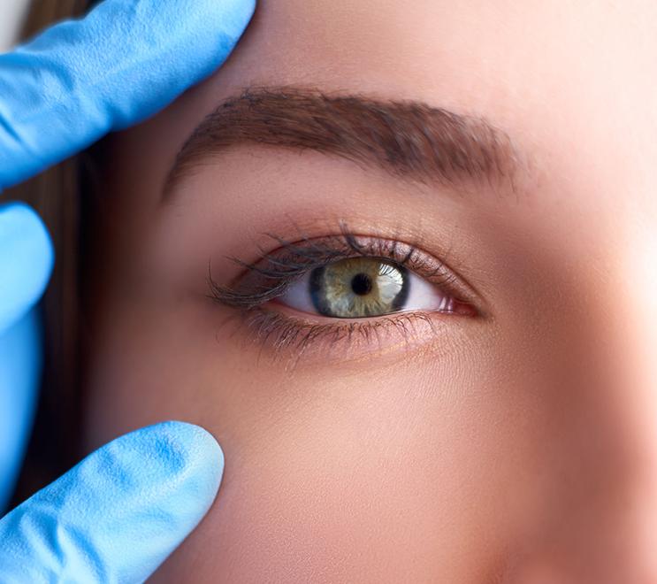 整形 雙眼皮 單變雙 大小眼 眼睛特寫 醫美 美容 護膚 保養 玻尿酸 保養