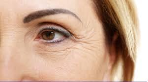 老年人 皮膚鬆弛 眼袋類型 眼紋 魚尾紋 乾紋 眼角皺紋突出